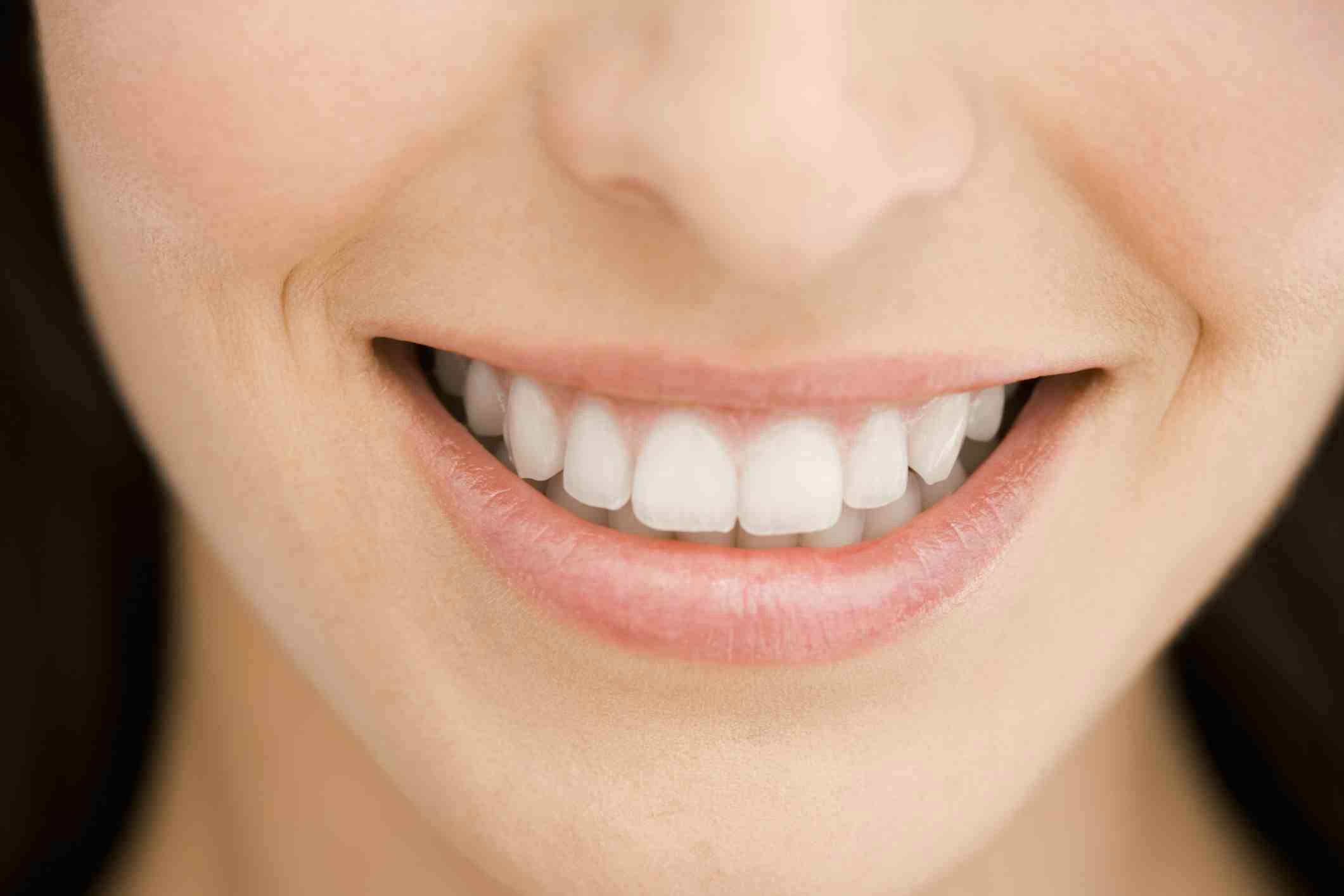 Cara Ampuh Untuk Memutihkan Gigi Dalam Waktu Singkat Buku Ilmu